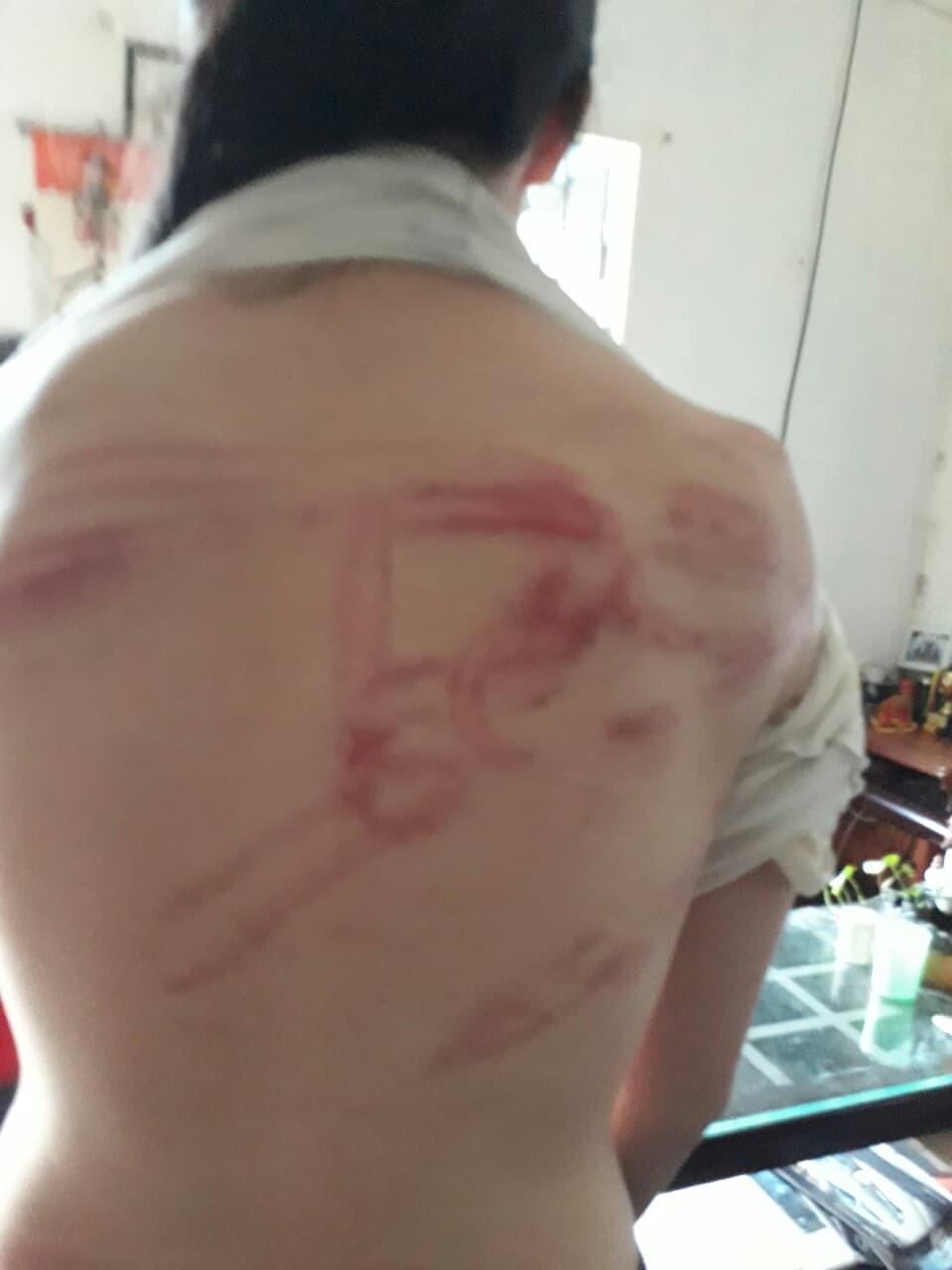Giây phút bố đẻ khóa trái cửa, dùng tuýp sắt bạo hành dã man 2 con ở Hà Nội: Nó đánh con như đánh kẻ thù vậy! - Ảnh 3.
