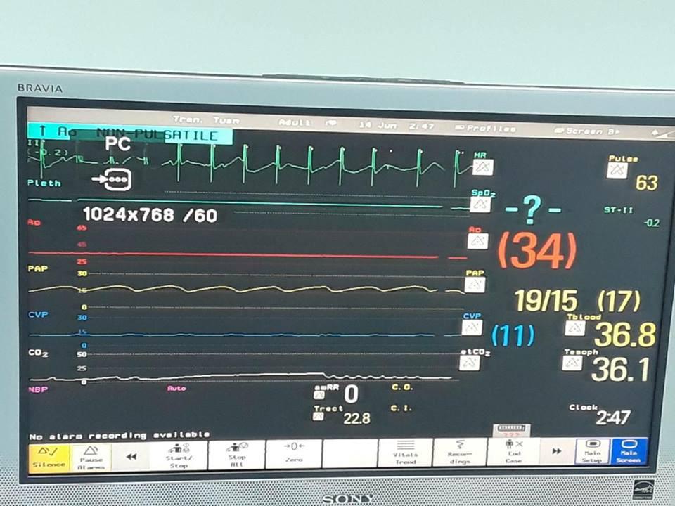 Gia cảnh khó khăn của nam sinh 15 tuổi được nhận quả tim xuyên Việt từ bệnh nhân chết não 6