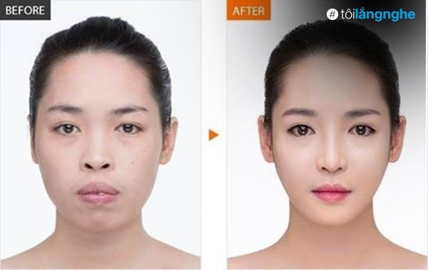 Hot girl PTTM Vũ Thanh Quỳnh trông như thế nào sau 3 năm dao kéo? - Ảnh 1.
