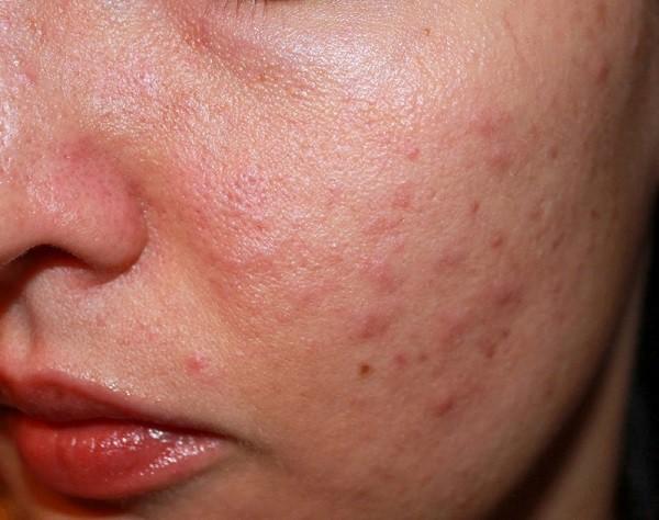Không sử dụng kem chống nắng hàng ngày là nguyên nhân khiến da bị lên mụn - Ảnh 1.