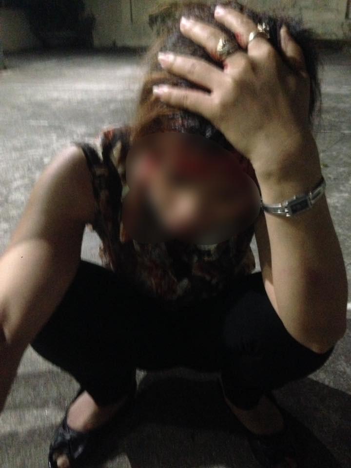 Hải Phòng: Chồng giúp bồ nhí đánh ghen ngược với vợ và con gái, người vợ bị đánh dã man đến chảy máu đầu - Ảnh 2.