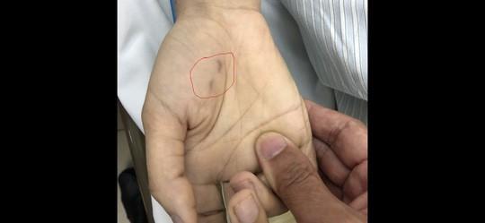 Chẩn đoán nhầm bệnh thú cưng, nữ bác sĩ trẻ tử vong do chó cắn - Ảnh 1.