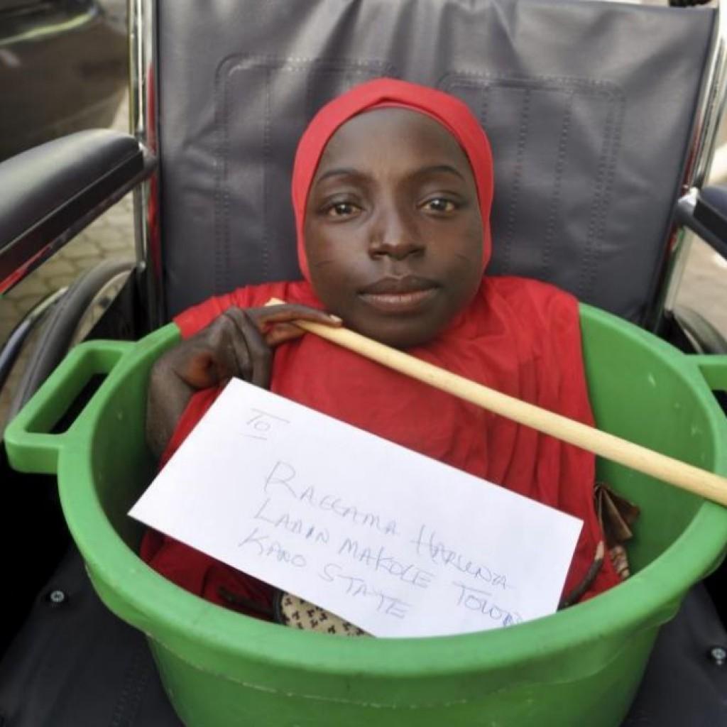 Hành trình của cô gái cả đời sống trong thau nhựa khiến cho hàng triệu người rơi nước mắt - Ảnh 1.