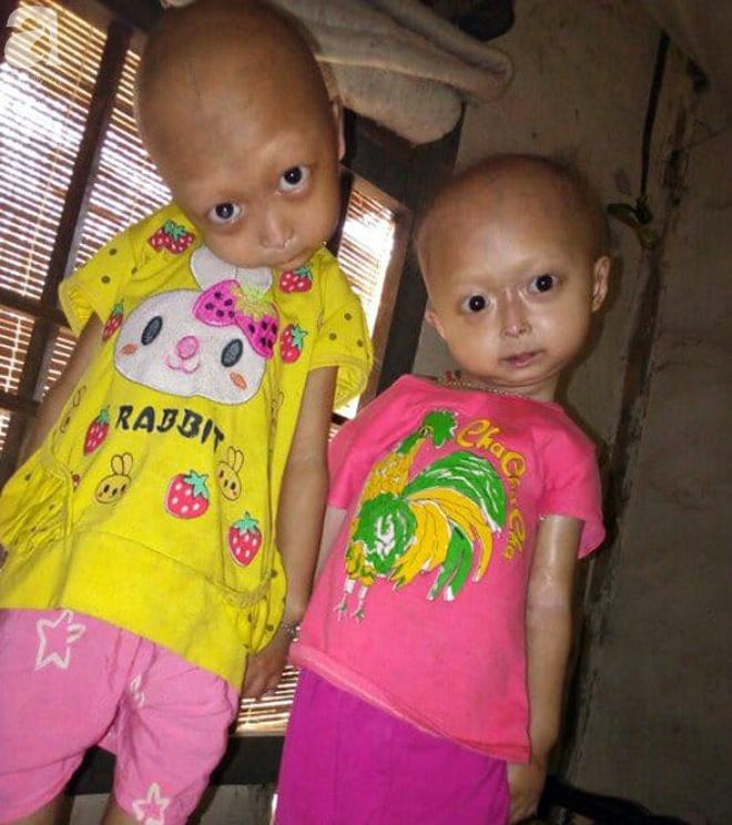 Tuyên Quang: 2 chị em gái mắc bệnh lạ khiến đầu, cổ bị nghẹo tựa người ngoài hành tinh khiến ai nhìn cũng xót xa - Ảnh 2.