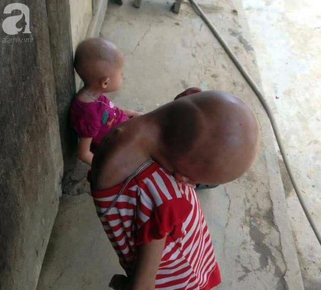 Tuyên Quang: 2 chị em gái mắc bệnh lạ khiến đầu, cổ bị nghẹo tựa người ngoài hành tinh khiến ai nhìn cũng xót xa - Ảnh 4.