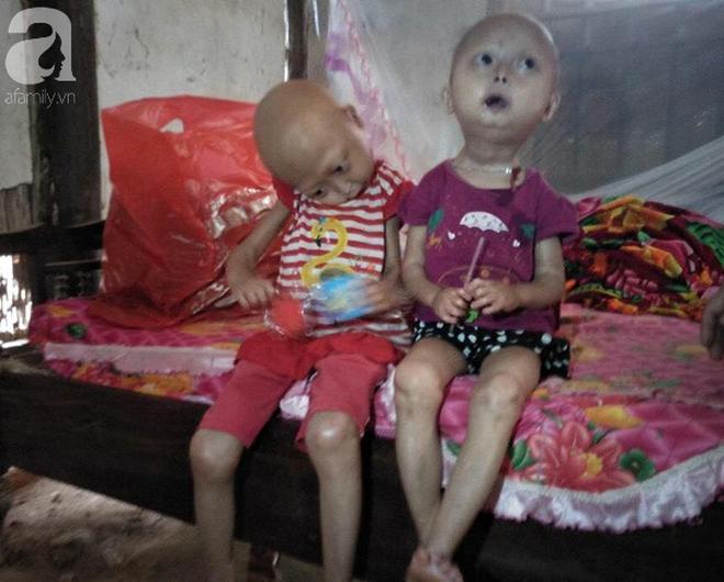 Tuyên Quang: 2 chị em gái mắc bệnh lạ khiến đầu, cổ bị nghẹo tựa người ngoài hành tinh khiến ai nhìn cũng xót xa - Ảnh 6.
