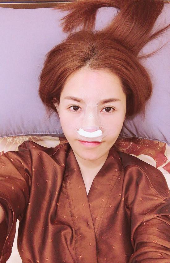 Cận cảnh gương mặt của Quế Vân sau cuộc phẫu thuật mũi lần thứ 6 - Ảnh 2.
