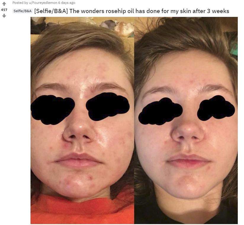 Nhờ loại dầu dưỡng này mà chỉ sau 3 tuần, làn da của cô gái này đã đỡ hẳn mụn, giảm nhờn và sáng khỏe rõ rệt - Ảnh 1.