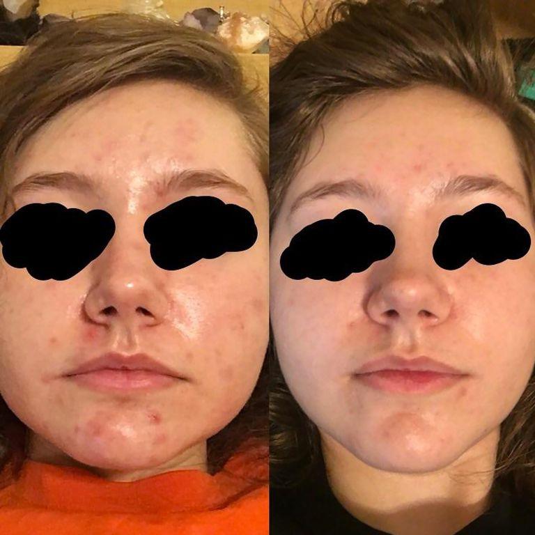 Nhờ loại dầu dưỡng này mà chỉ sau 3 tuần, làn da của cô gái này đã đỡ hẳn mụn, giảm nhờn và sáng khỏe rõ rệt - Ảnh 2.