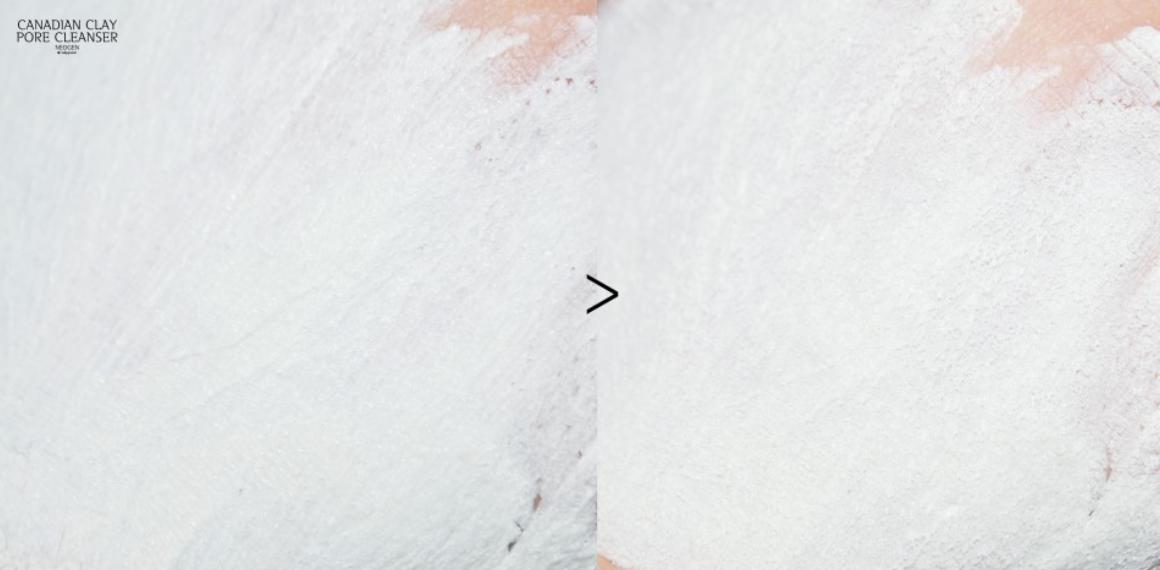 Hội con gái Hàn chỉ tin dùng 5 sản phẩm này để trị sạch đám mụn đầu đen xấu xí - Ảnh 16.