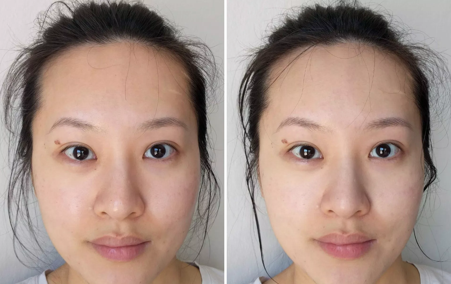 Hội con gái Hàn chỉ tin dùng 5 sản phẩm này để trị sạch đám mụn đầu đen xấu xí - Ảnh 17.