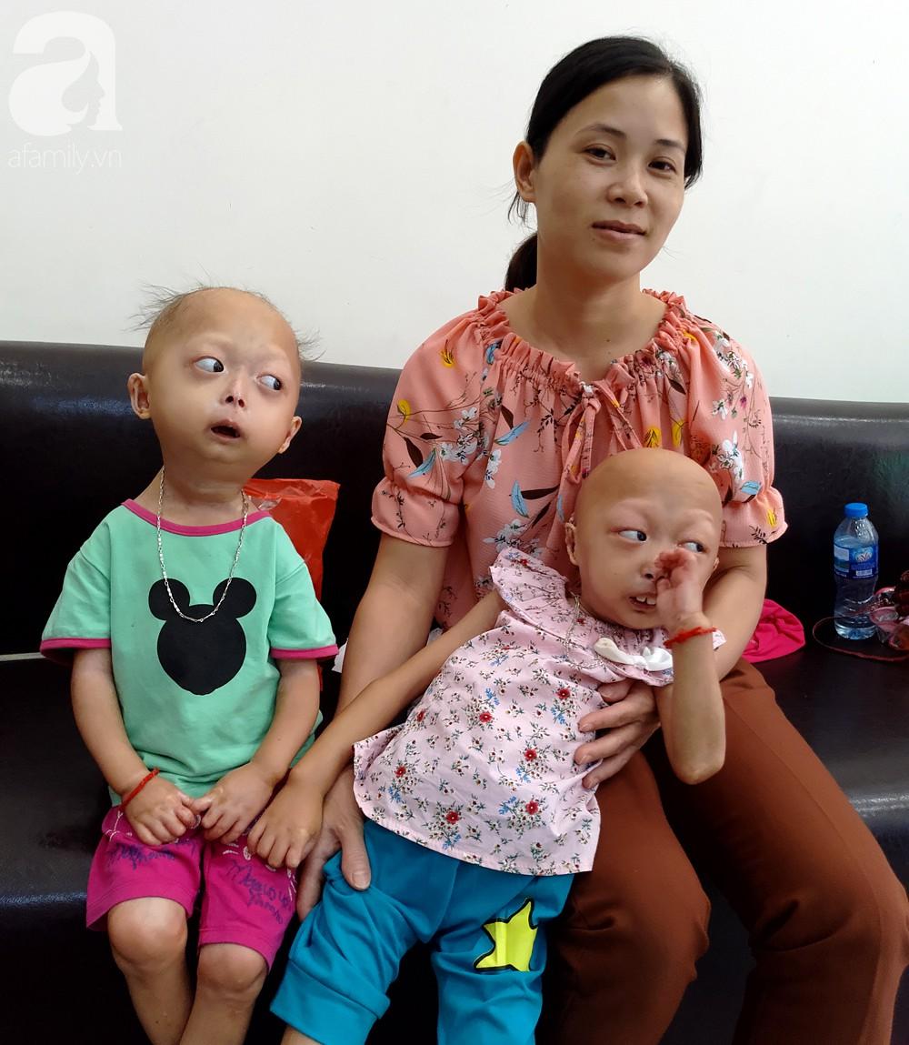 Mẹ của 2 bé gái bị đầu, cổ vẹo lệch ở Tuyên Quang: Giá như con khỏi bệnh, dù đánh đổi gì tôi cũng cam lòng - Ảnh 2.