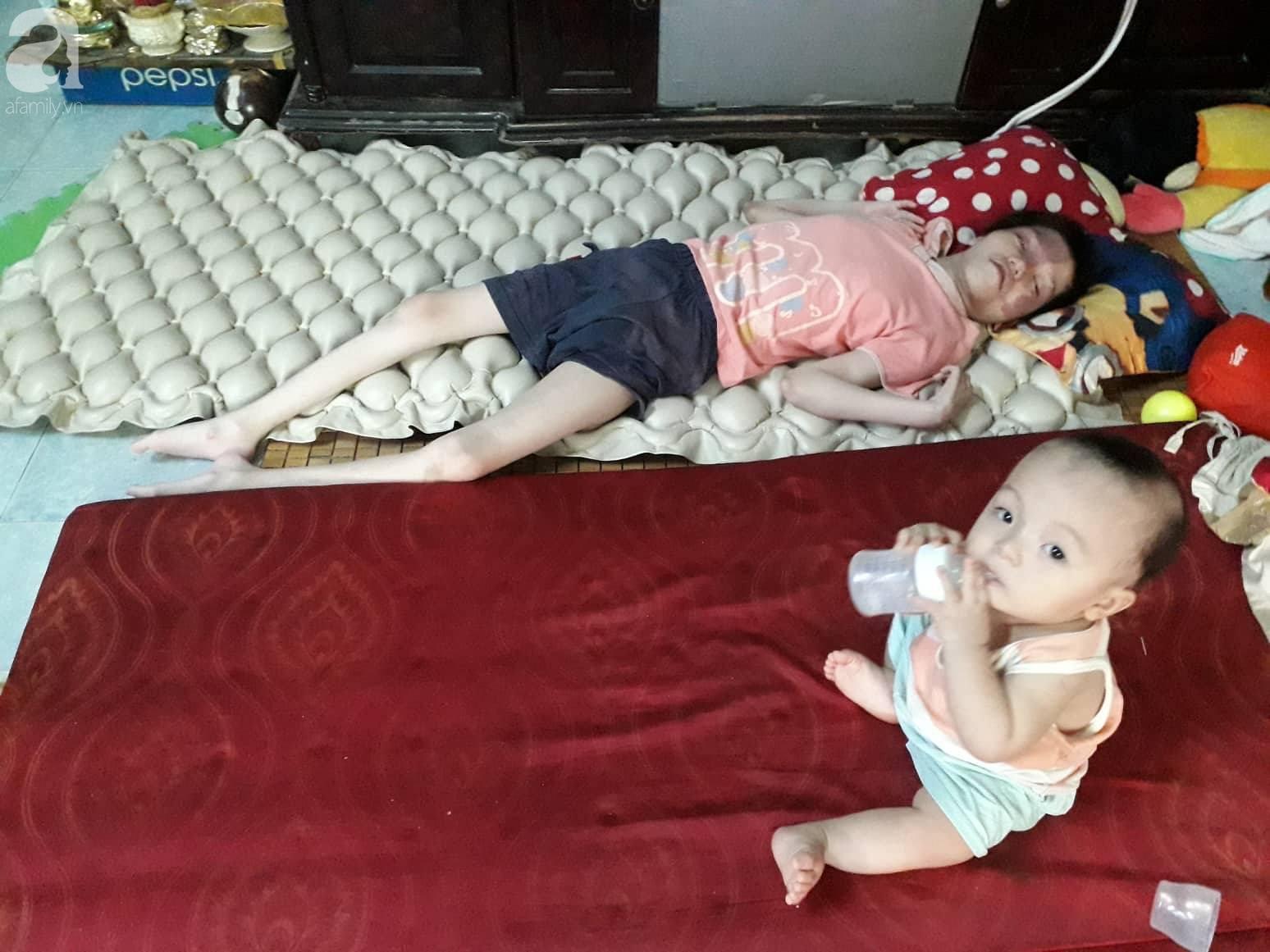 Đà Nẵng: Người mẹ nghèo nuôi 3 con thơ nheo nhóc, bất lực nhìn con gái 15 tuổi co giật vì bệnh u máu quái ác - Ảnh 5.