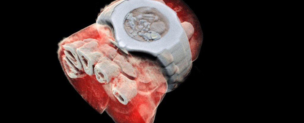Quên bức ảnh X- quang đơn sắc đi, khoa học đã cho ra đời những bức ảnh có màu đầu tiên rồi đây - Ảnh 3.