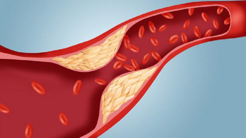 Những biểu hiện của bệnh gan nhiễm mỡ mà bạn nên sớm phát hiện trước khi dẫn đến ung thư gan - Ảnh 4.