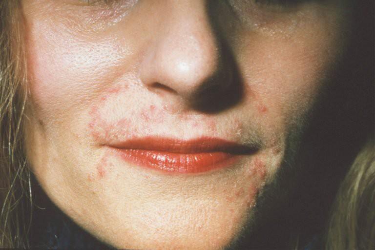 Cứ tưởng là bị mụn thông thường nhưng đây lại là những căn bệnh nghiêm trọng về da - Ảnh 4.