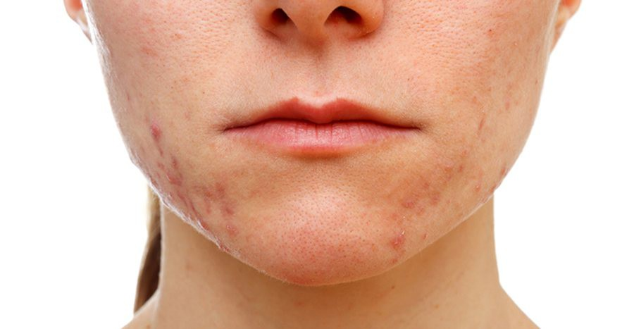 Cứ tưởng là bị mụn thông thường nhưng đây lại là những căn bệnh nghiêm trọng về da - Ảnh 6.
