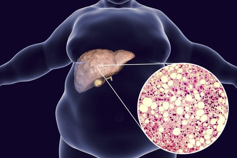 Những biểu hiện của bệnh gan nhiễm mỡ mà bạn nên sớm phát hiện trước khi dẫn đến ung thư gan - Ảnh 9.
