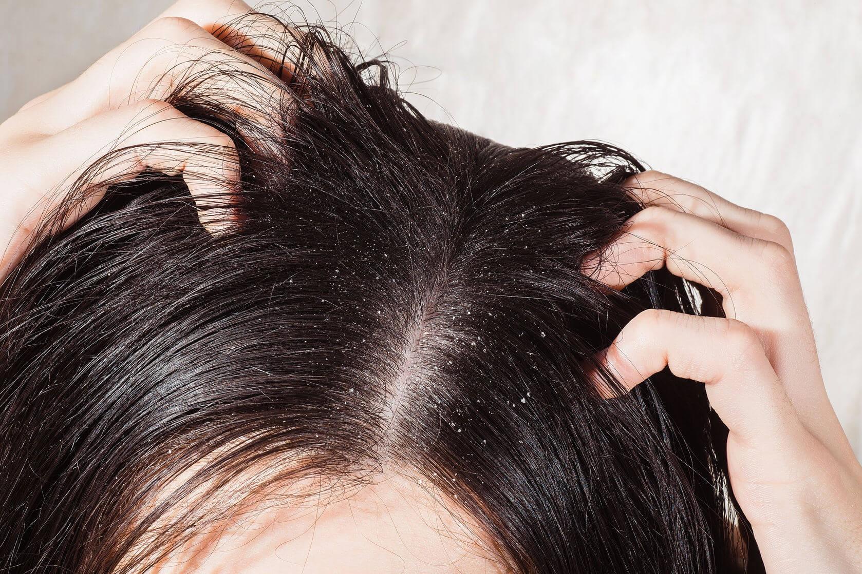 Để tóc ướt đi ngủ, bạn có thể gặp phải vô số tác hại ảnh hưởng nghiêm trọng tới sức khỏe - Ảnh 6.