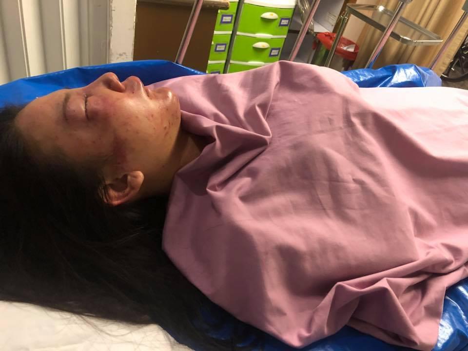 Hình ảnh cô gái xinh đẹp bị bạn trai 7 năm đánh đập tàn bạo nơi công cộng gây dậy sóng MXH - Ảnh 2.