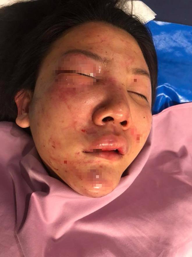 Hình ảnh cô gái xinh đẹp bị bạn trai 7 năm đánh đập tàn bạo nơi công cộng gây dậy sóng MXH - Ảnh 3.