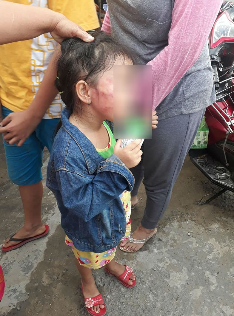TP.HCM: Bé gái 5 tuổi nghi bị bảo mẫu tát liên tục đến sưng mặt, dọa lấy kéo cắt lưỡi nếu nói cho gia đình biết - Ảnh 1.