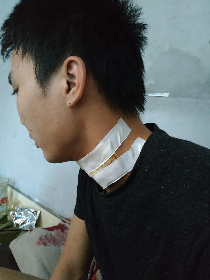 Lời kể của tài xế taxi ở Hà Nội bị nam hành khách cứa cổ trong đêm - Ảnh 2.