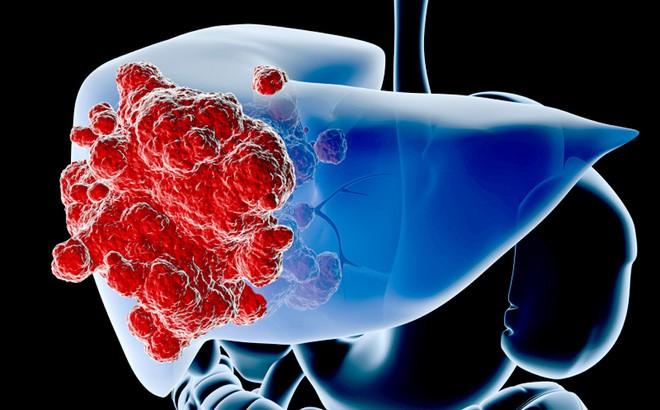 Hãy cẩn thận với nguy cơ mắc các bệnh ung thư do béo phì, thừa cân gây ra - Ảnh 7.
