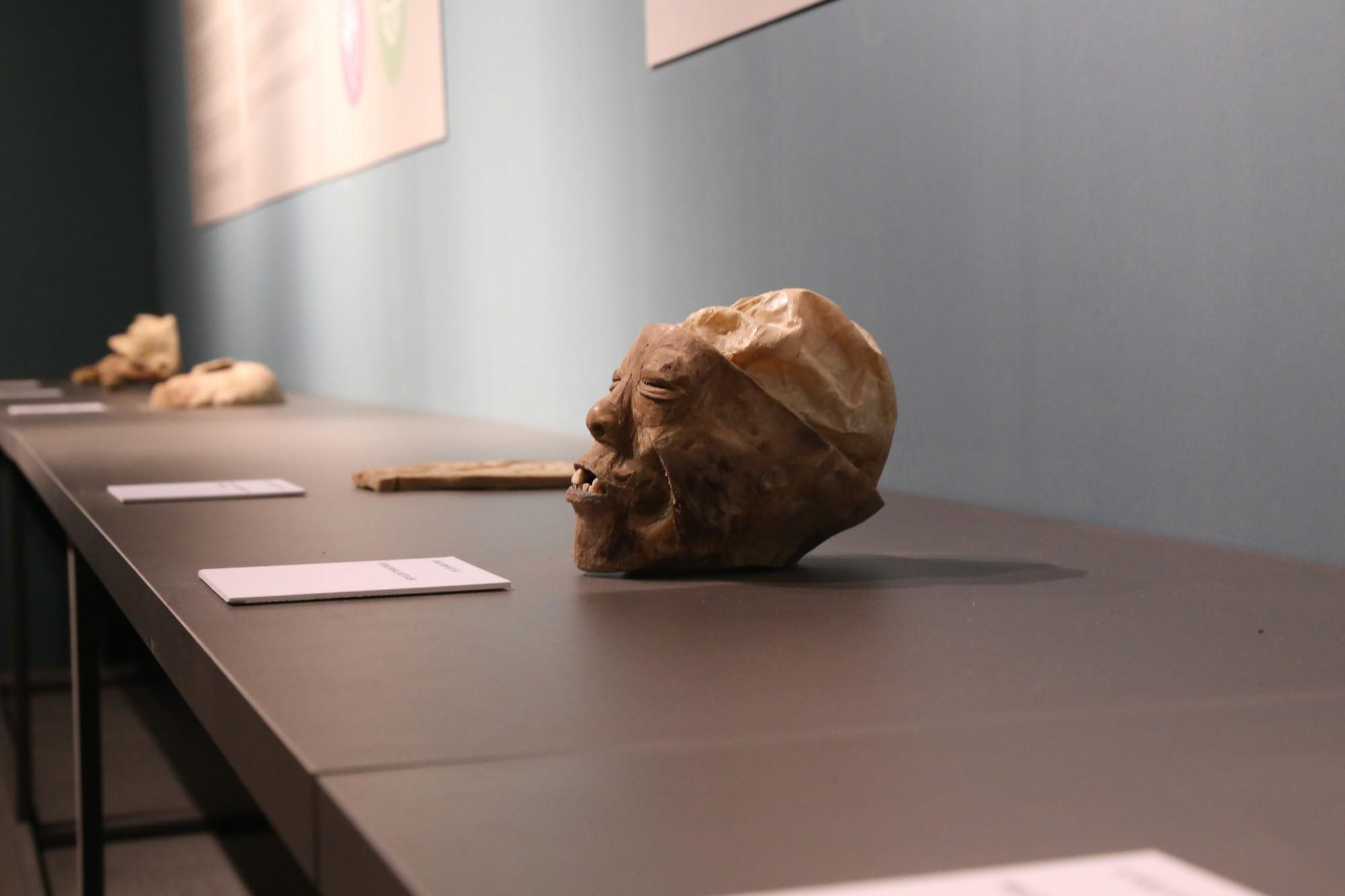 Một đầu người thật bị cắt nửa phần, các bộ phận răng vẫn còn nguyên sau khi được nhựa hoá.