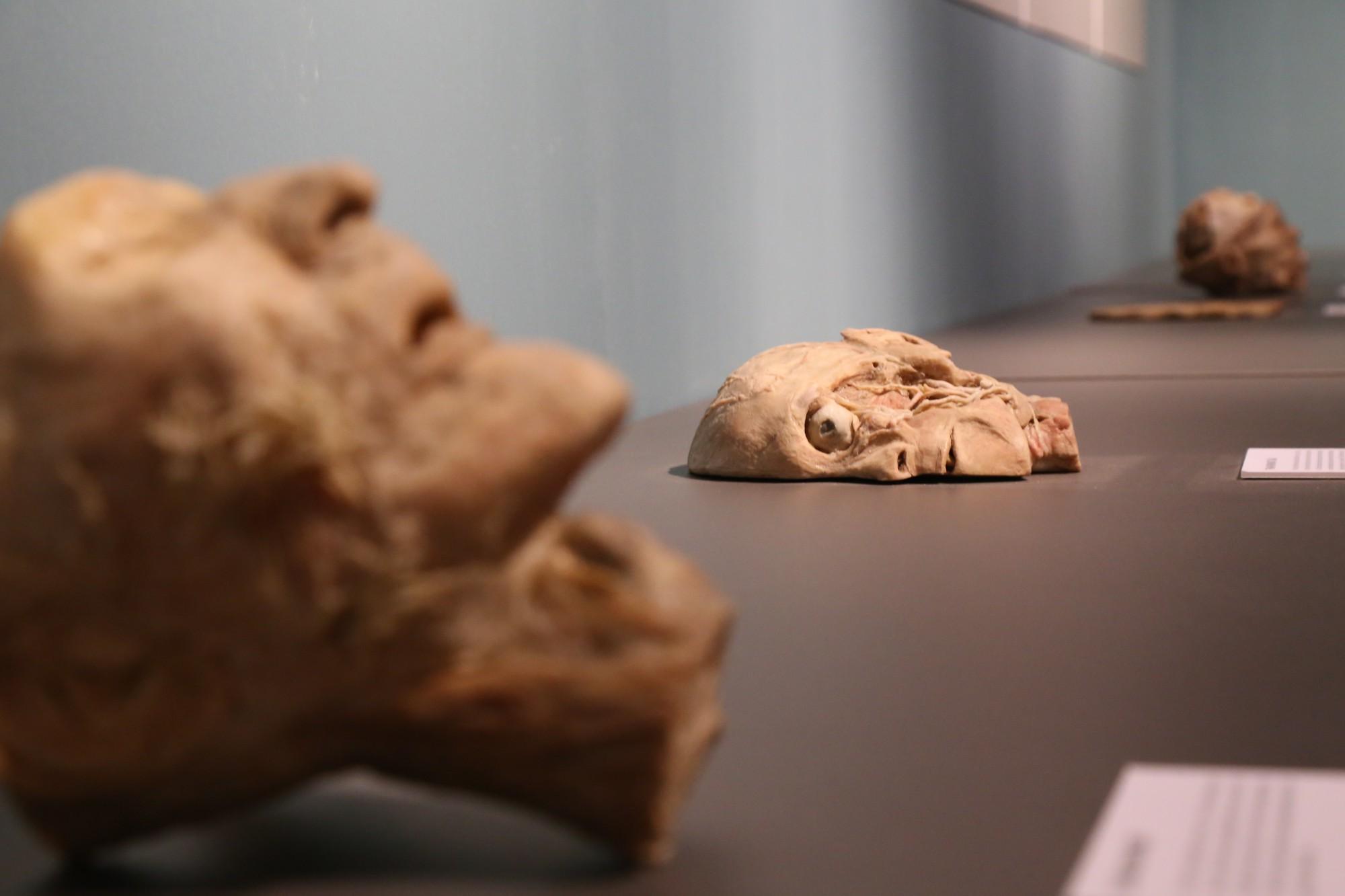 Phần cắt nửa mặt đầu con người.