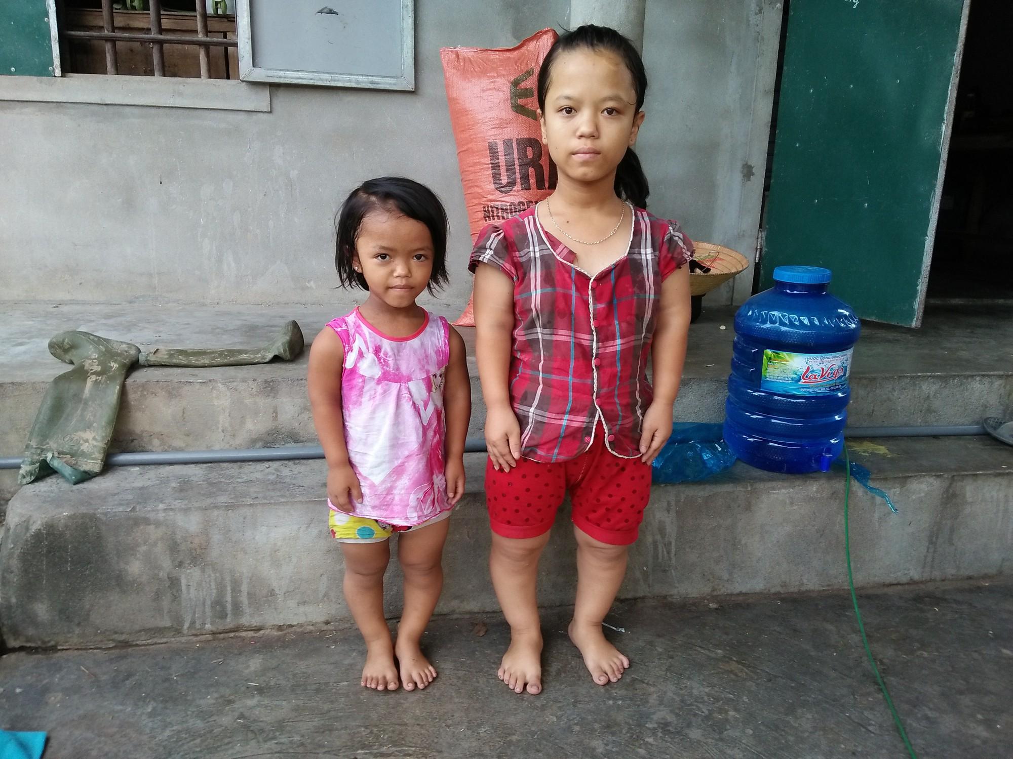 Số phận nghiệt ngã của cô bé bị Down và tim bẩm sinh, 4 tuổi chỉ cao 60cm, nặng 9kg, chưa biết đi, chưa biết nói - Ảnh 3.