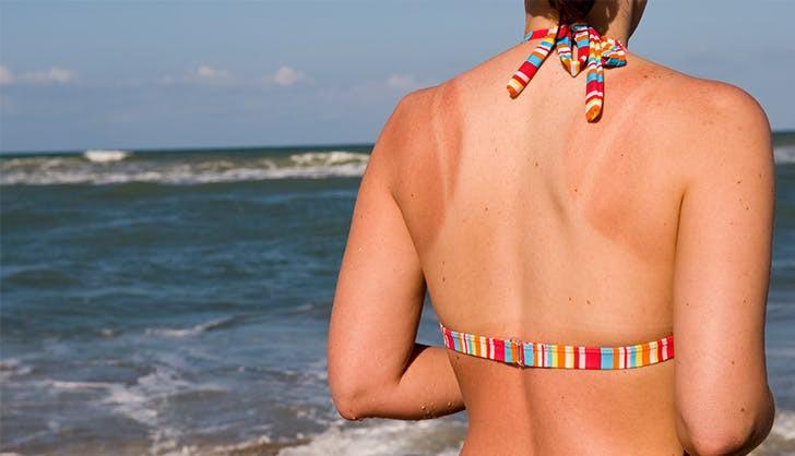Những vết hằn dây áo do cháy nắng sẽ biến mất nhanh hơn với 5 tips đơn giản này - Ảnh 5.