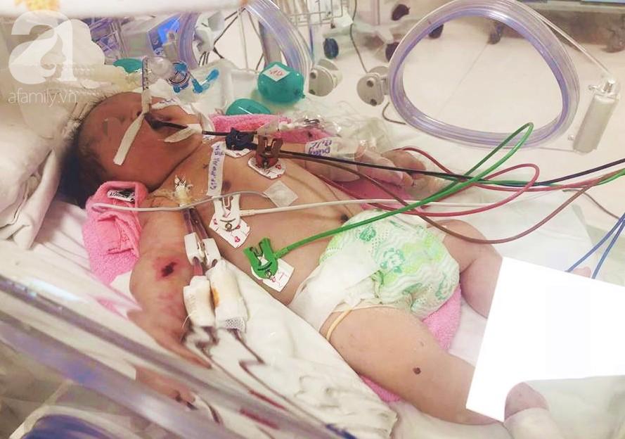 TP.HCM: Bé trai 5 ngày tuổi đang khỏe mạnh bỗng ọc máu, suy hô hấp và hôn mê vì căn bệnh rất hiểm - Ảnh 1.