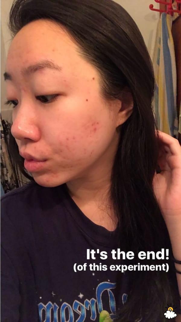 Thoa dầu dừa lên da trong 1 tuần để chữa sẹo mụn, cô nàng này đã nhận được kết quả đáng thất vọng - Ảnh 8.