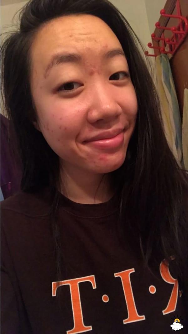 Thoa dầu dừa lên da trong 1 tuần để chữa sẹo mụn, cô nàng này đã nhận được kết quả đáng thất vọng - Ảnh 4.