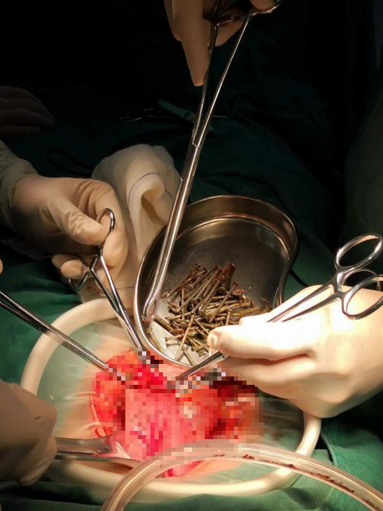 Trung Quốc: Nhập viện vì đau bụng dữ dội, bác sĩ phát hiện bệnh nhân đã nuốt đến 87 cây đinh sắt - Ảnh 2.