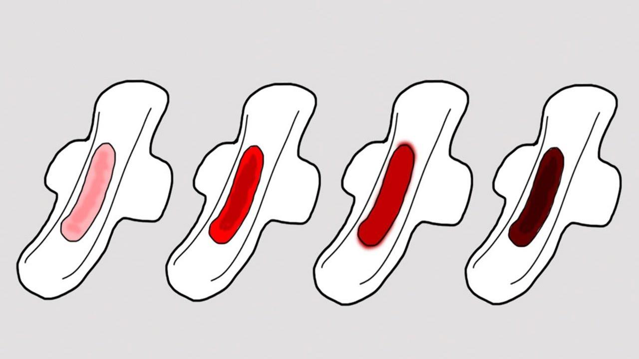 Polyp cổ tử cung và 5 dấu hiệu nhận biết về căn bệnh này mà con gái không nên chủ quan bỏ qua - Ảnh 2.