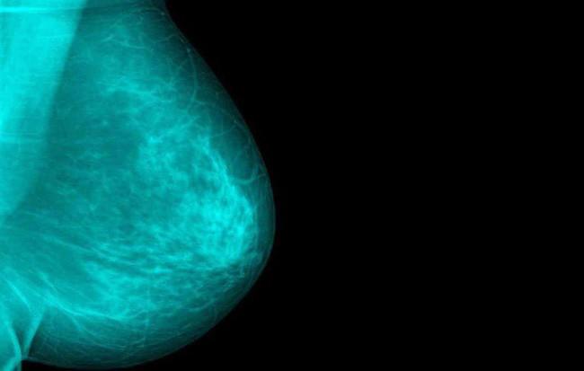 Chủ quan khi thấy vết ố màu xanh lá dính ở mặt trước của áo sơ mi, người phụ nữ giật mình khi biết đã bị bệnh nặng - Ảnh 1.