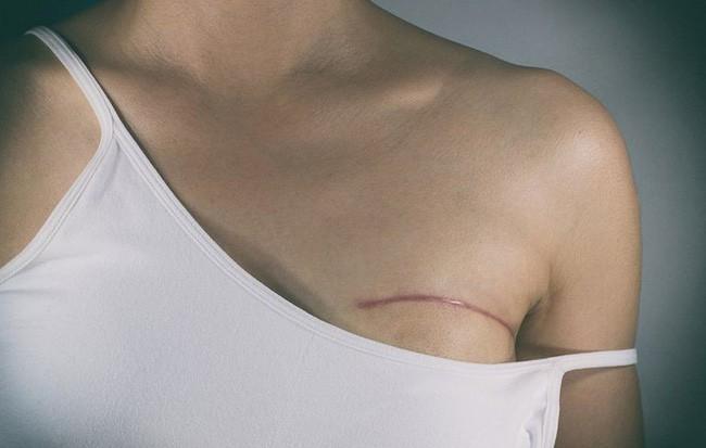 Chủ quan khi thấy vết ố màu xanh lá dính ở mặt trước của áo sơ mi, người phụ nữ giật mình khi biết đã bị bệnh nặng - Ảnh 3.