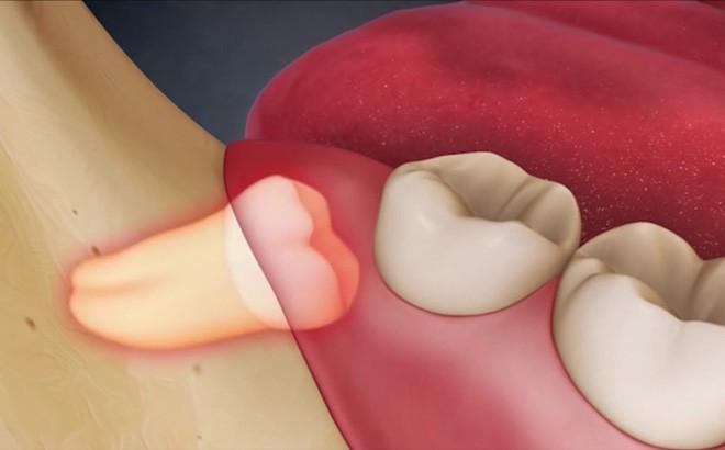 Ai cũng phát điên vì răng khôn và bạn nhất định phải biết những điều này về chúng - Ảnh 1.