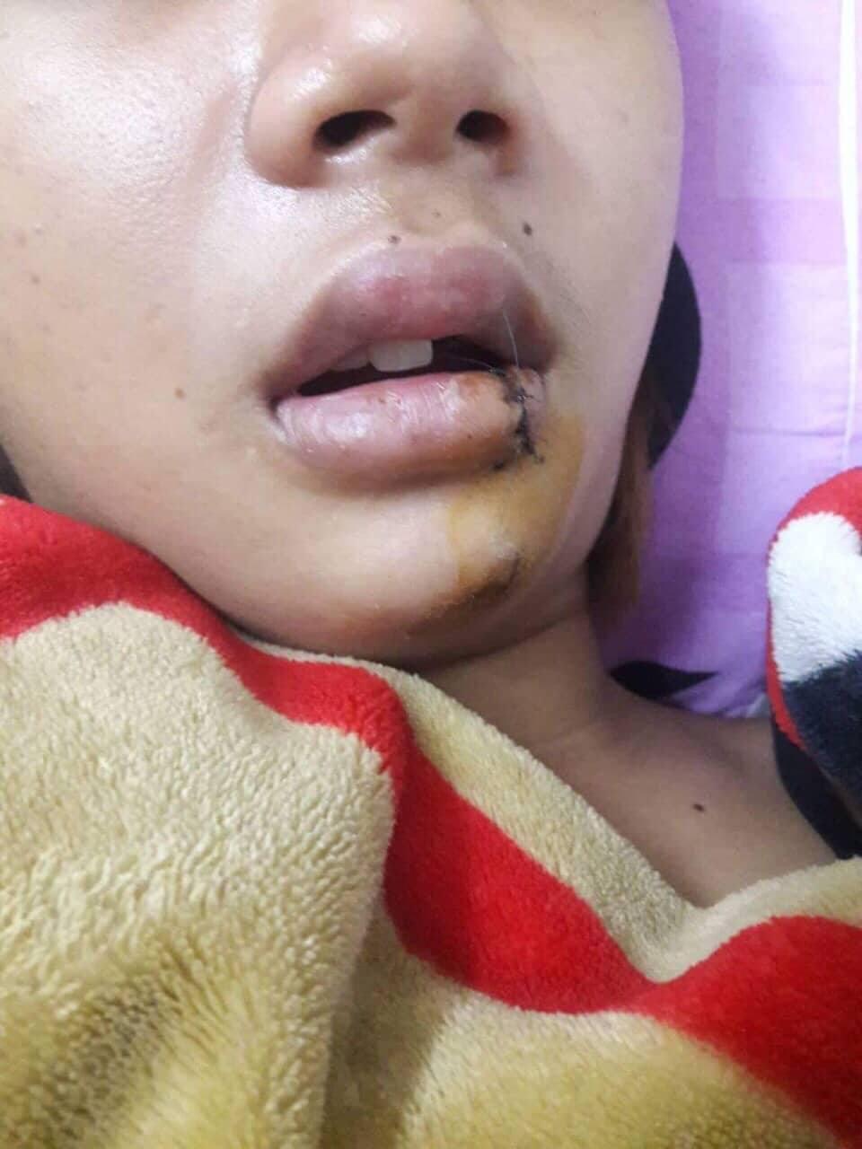 Thiếu nữ 14 tuổi bị nhóm thanh niên truy sát giữa đêm ở Sài Gòn 2