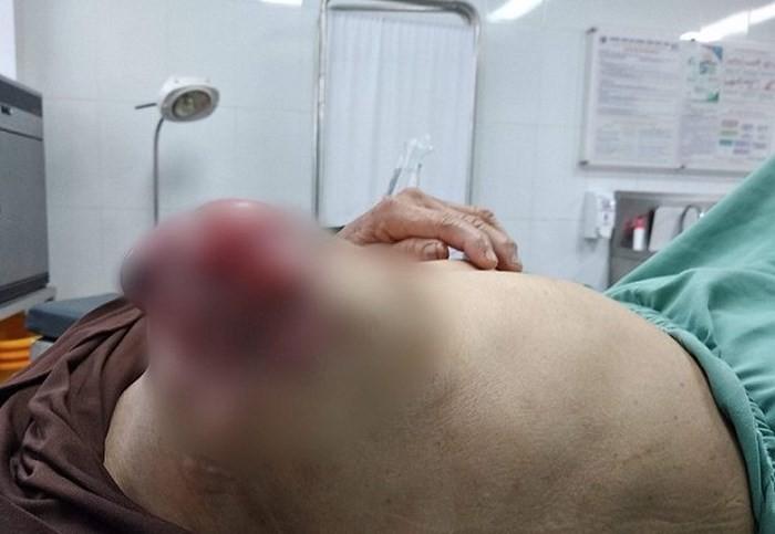 Đắp lá chữa u vú suốt 3 năm, người phụ nữ gánh hậu quả đau lòng - Ảnh 1.