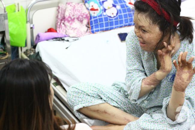 Sau 1 năm và hàng chục cuộc phẫu thuật, người vợ Hà Nội bị chồng thiêu hôm mùng 2 Tết, chỉ có 1% cơ hội sống sót đã hồi sinh - Ảnh 2.