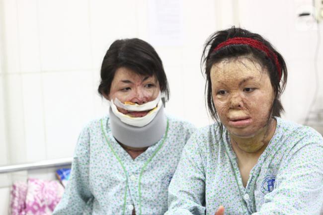 Sau 1 năm và hàng chục cuộc phẫu thuật, người vợ Hà Nội bị chồng thiêu hôm mùng 2 Tết, chỉ có 1% cơ hội sống sót đã hồi sinh - Ảnh 9.