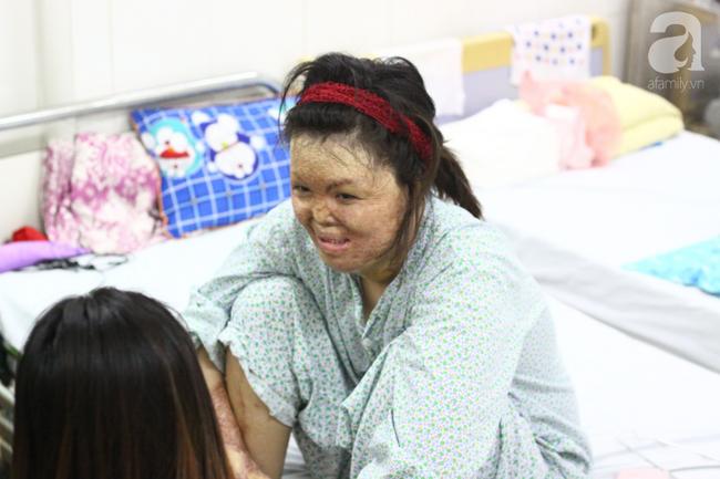 Sau 1 năm và hàng chục cuộc phẫu thuật, người vợ Hà Nội bị chồng thiêu hôm mùng 2 Tết, chỉ có 1% cơ hội sống sót đã hồi sinh - Ảnh 5.