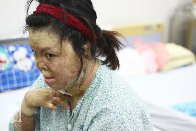 Sau 1 năm và hàng chục cuộc phẫu thuật, người vợ Hà Nội bị chồng thiêu hôm mùng 2 Tết, chỉ có 1% cơ hội sống sót đã hồi sinh - Ảnh 6.