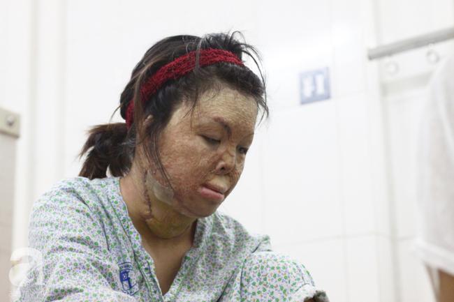 Sau 1 năm và hàng chục cuộc phẫu thuật, người vợ Hà Nội bị chồng thiêu hôm mùng 2 Tết, chỉ có 1% cơ hội sống sót đã hồi sinh - Ảnh 7.