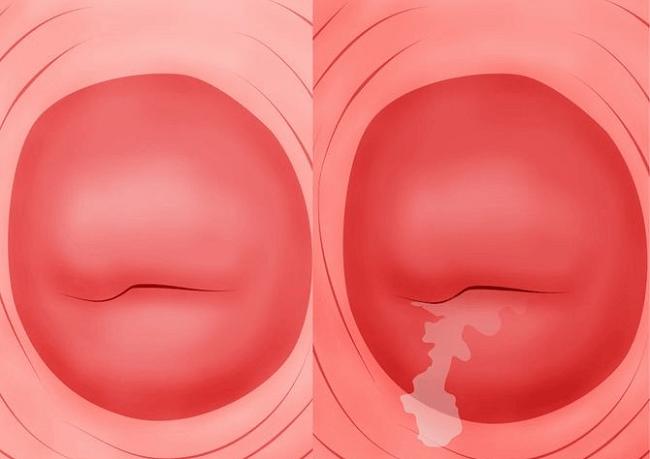 Đây là 6 căn bệnh thường gặp ở cổ tử cung mà con gái nên đặc biệt nắm rõ - Ảnh 2.