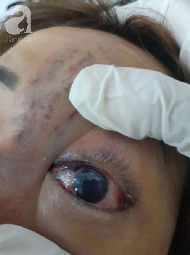 Tiêm filler nâng mũi, nữ sinh viên 20 tuổi ở Sài Gòn đối diện nguy cơ hoại tử da, mù mắt vĩnh viễn - Ảnh 5.