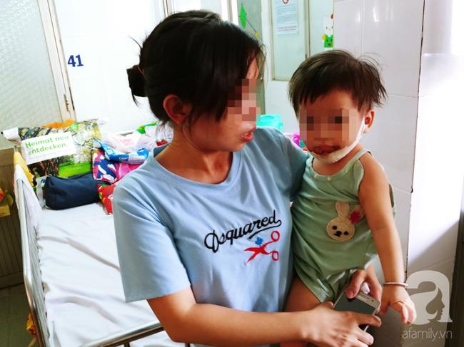 TP.HCM: Mẹ đơn thân tố bảo mẫu làm con gái 18 tháng tuổi bị bỏng nặng ở mặt - Ảnh 4.